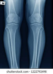 x-ray OA knee both knee in blue tone, x-ray image of knee joint show mild degenerative change
