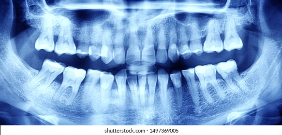 X-ray of the oral cavity with teeth. Orthopantomogram. Toned