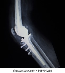 X-ray orthopedic medical CAT scan of painful knee meniscus injury leg in Traumatology hospital clinic with prosthetics Trauma implant screws.