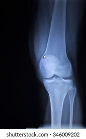 X-ray orthopedic medical CAT scan of painful knee meniscus injury leg in traumatology hospital clinic.