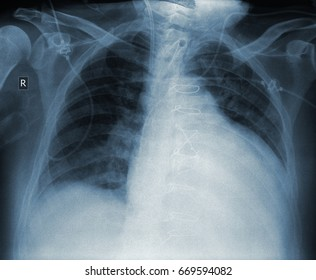 X-ray of patient with heart disease after surgery.