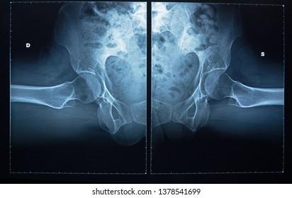 X-ray of pelvic bones and human spine.