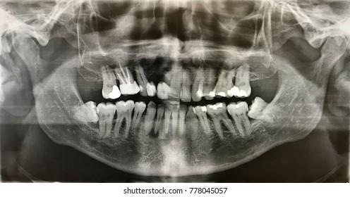 x-ray photo of human teeth with wisdom teeth