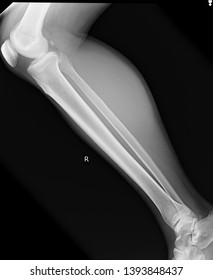 X-ray picture of body part