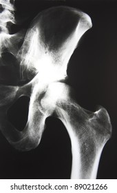 X-Ray picture of a hip