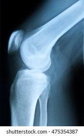 X-ray picture knee