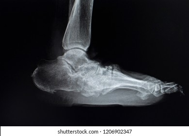 X-ray Picture of lateral plane radiographic standing position. Shown flat and rocker-bottom foot appearance. severe mid foot deformity in diabetes patient.