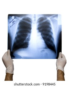 X-ray picture of lungs