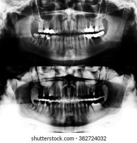 X-ray picture of teeth, teeth