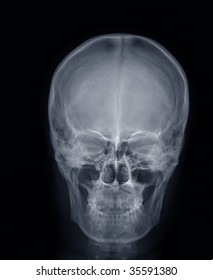 x-ray picture:human head,frontal view