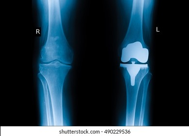 xray post operation cemented total knee replacement left knee