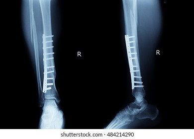 xray post operation fracture tibia and screw and plate