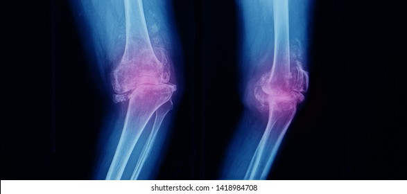 x-ray or radiograph of both knee showing severe osteoarthritis with varus angulation and lateral subluxation of knee joint. Bow legs. Total knee replacement or arthroplasty is needed. Dark background.