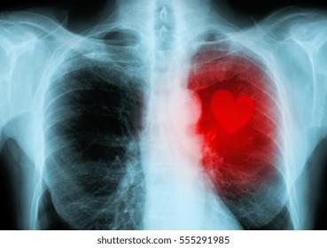 x-ray red heart of human (heart disease)