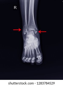 X-ray Right Ankle A woman 64 year ole accident showing Spiral fracture of distal fibula at level of syndesmosis, with minimal displacement.