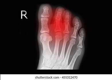 xray right foot show closed fracture 2nd toe