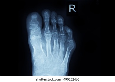 xray right foot show fracture big toe
