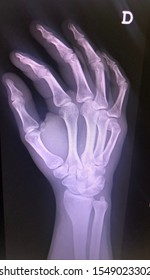 X-ray of a right hand with fifth metacarpal fracture