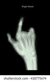 xray right hand : show amputation middle and ring finger right hand