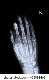Xray Right Hand : Show fracture index finger right hand