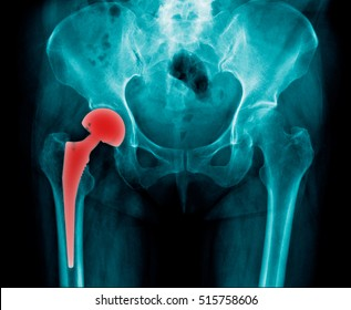x-ray right hip replacement and pelvic bone