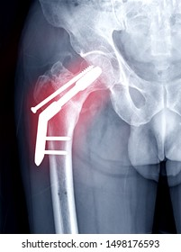 x-ray Right hip showing  hip replacement or hip prosthesis made from titanium.