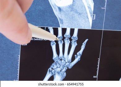 X-ray scan of hand, bones and finger joints. Doctor pointed on finger small joints, where pathology is detected, such as arthritis, rheumatoid,fracture. Diagnosis of joint diseases by radiology