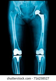 Xray scan of patient who have hip replacement and knee arthroplasty (knee replacement) treatment for Osteoarthritis knee, hip arthritis, Osteonecrosis of Hip. After surgery patient can walk normally.