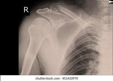 xray shoulder : frozen shoulder right