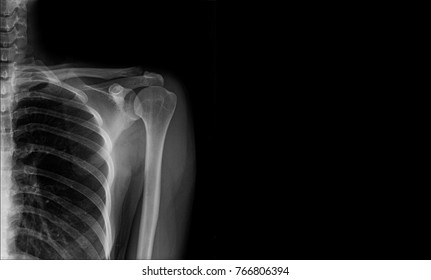 x-ray shoulder in gray tone with space right side(banner)