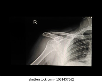 X-ray shoulder a wuman 74 year old,Show anterrior shoulder dislocation.