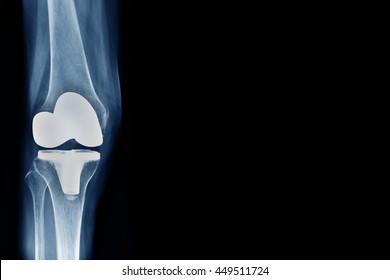 x-ray show knee joint replacement / knee arthroplasty front view and blank area at right side