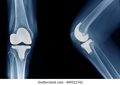 x-ray show knee joint replacement / knee arthroplasty front view and side view