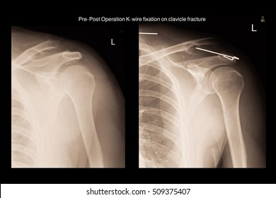 xray show pre-post opeartion k-wire fixation at left clavicle