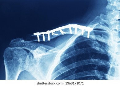 x-ray showing fracture clavicle or collarbone after open reduction and internal fixation or ORIF with plate and screw. the alignment of fracture was reduced to anatomical position.
