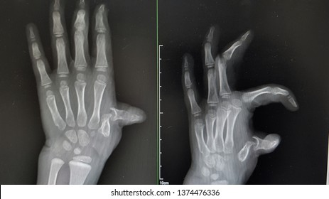 The x-ray is shown a hand with anatomical distortion bone of first metacarpal head and subluxation of this joint.