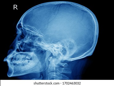 X-ray skull Finding The cranial vault is intact.No abnormal intra-cranial calcification or pneumocephalus is noted.The sella turcica looks narmal.Medical image concept.