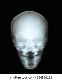 X-ray of the skull of the head with signs of illness, Palatoschisis