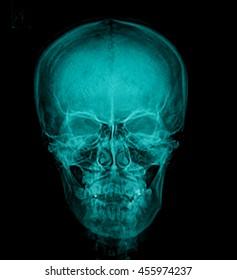 x-ray skull of human