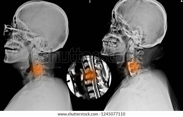 Xray Small Mri Cspine Showing Internal Stock Photo (Edit Now) 1245077110