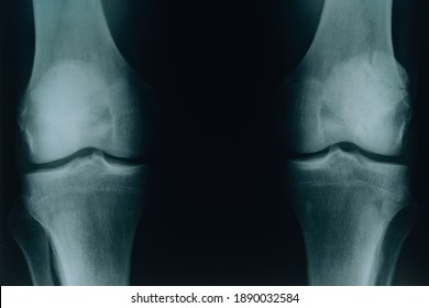 X-ray of two knee joints. Diseases of the joints and bones.