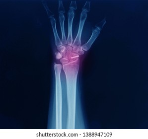 An x-ray of wrist or carpus showing closed fracture of scaphoid bone after injury. The fracture was treated by open reduction and internal fixation or ORIF with screw by orthopedic surgeon.