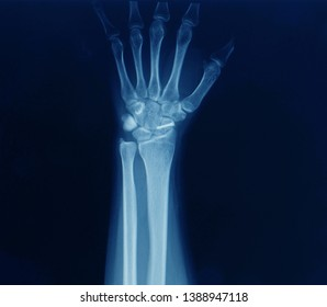 An x-ray of a wrist or carpus showing closed fracture of scaphoid bone after injury. The fracture was treated by open reduction and internal fixation or ORIF with screw by orthopedic surgeon.