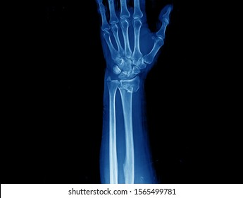 X-ray of wrist and forearm showing closed fracture with displacement of distal radius and ulnar styloid process. The patient needs open reduction and internal fixation of the fracture.