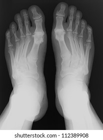 X-rays of both feet of an adult man with visible damage