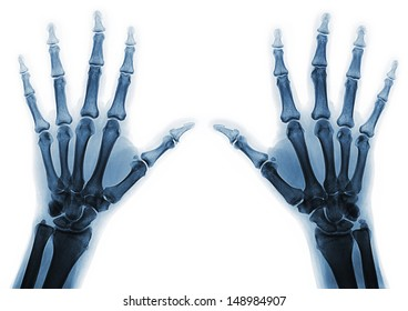 X-rays of hands of an adult man with visible damage