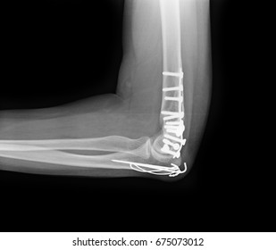 X-rays image of elbow fracture patients