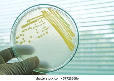 yellow colony of bateria in in petridish with microbiology concept