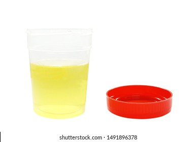 Yellow color is normal urine sample in sterile plastic container with red lid isolated on white background for determined by urine test strip or dipstick test in lab