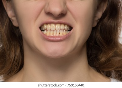 Yellow is not even and crooked lower teeth of a young woman